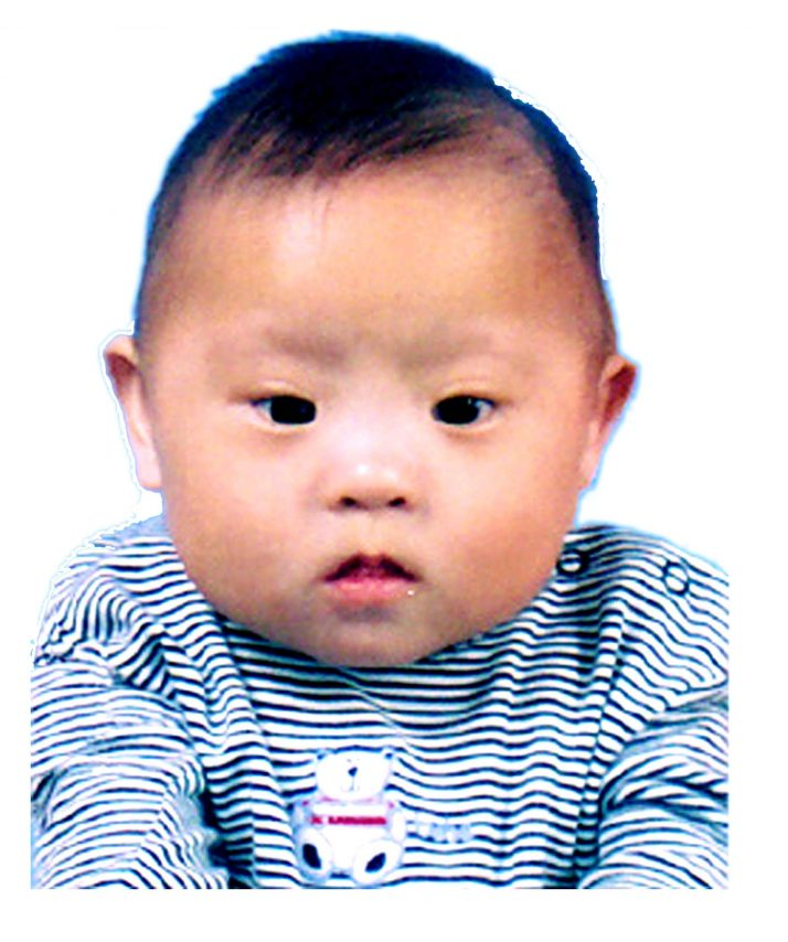 Picture of baby with down syndrome